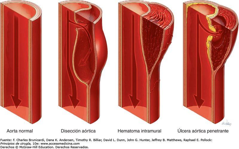 Aneurisma Disecante o DisecciónAórtica