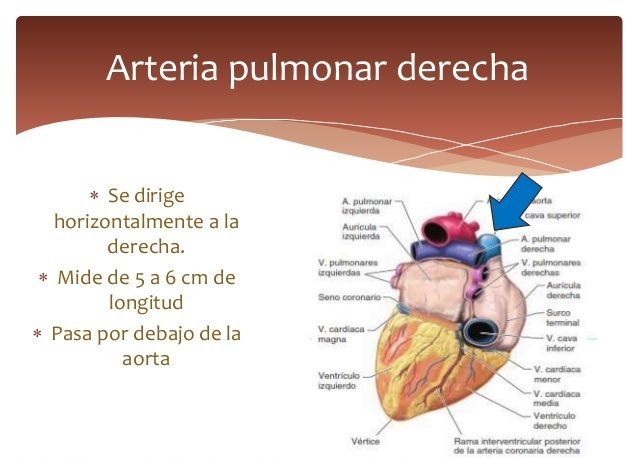 Aneurisma pulmonar