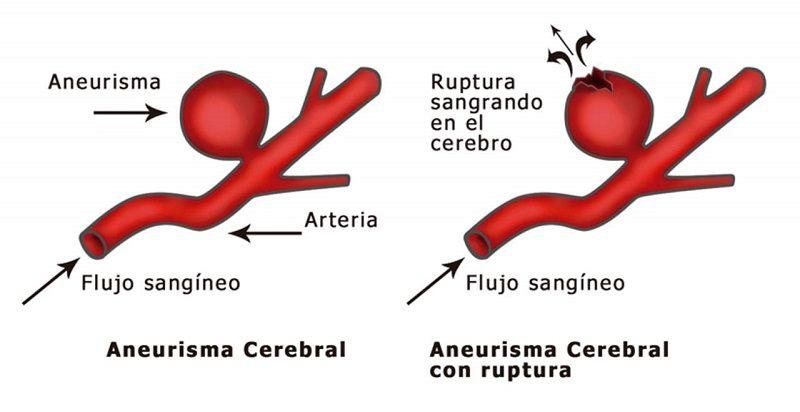 Ejemplo de Aneurisma Cerebral