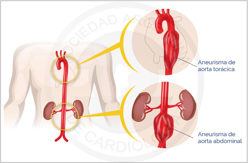 aneurisma aórtico