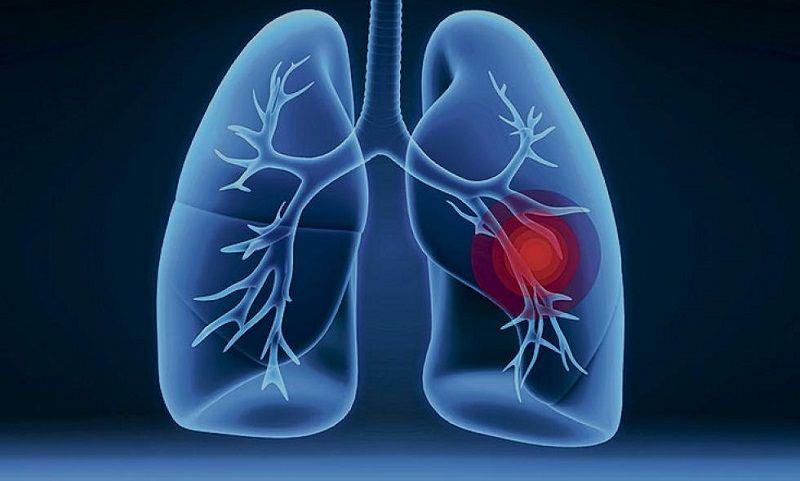Aneurisma arteria pulmonar