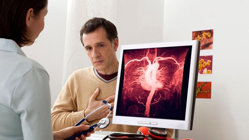Persona con aneurisma aórtico